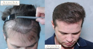 FUE hair treatment dallas tx