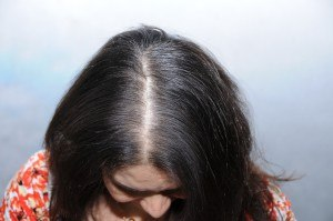 Women Hair Loss L Female Pattern Baldness Dallas L Houston