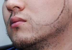 Artas texas fue transplant facial hair beard