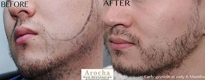facial hair before after transplant texas