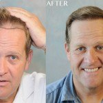 texas fut hair transplant before after results