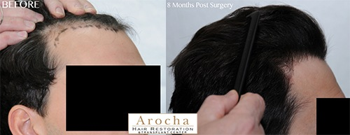 fue hair transplant JW 2500 8 months 3 right