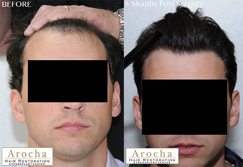 fue hair transplant jw 2500 8 months 1 FrontFace