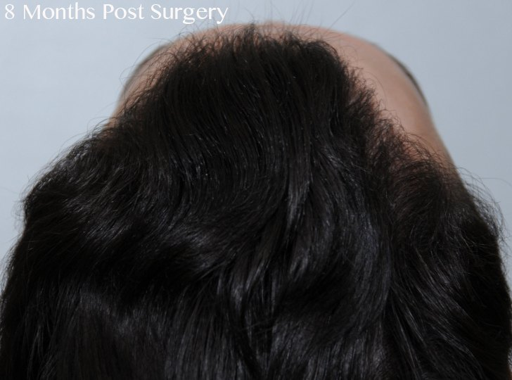 fue hair transplant jw 2500 8 months 6 topdown copy