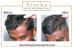 FUE hair transplant texas 2500 grafts 18 months 2