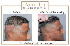 FUE hair transplant texas 2500 grafts 18 months 3