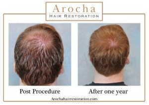 hair transplant texas 1500 grafts 12 months 1