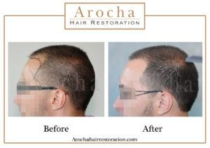 hair transplant texas 2005 grafts 36 months 2