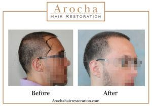 hair transplant texas 2005 grafts 36 months 3