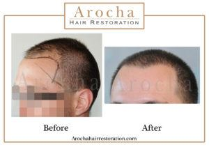 hair transplant texas 2005 grafts 36 months 5