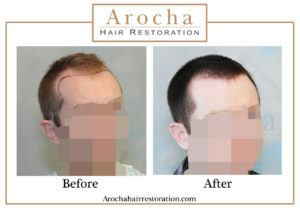 hair transplant texas 2100 grafts 5 months 2