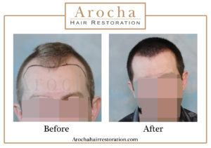 hair transplant texas 2100 grafts 5 months 3 copy