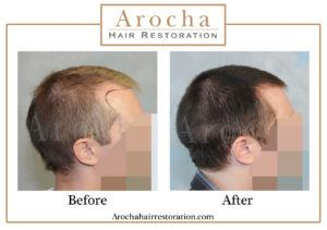 hair transplant texas 2100 grafts 5 months 4