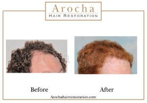 hair transplant texas 3000 grafts 12 months 1