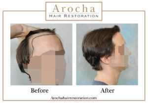 hair transplant texas 3000 grafts 36 months 1