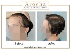 hair transplant texas 3000 grafts 36 months 2