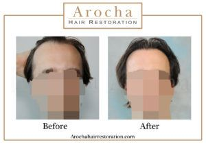 hair transplant texas 3000 grafts 36 months 3