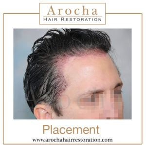 fut hair transplant texas