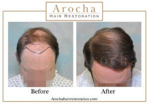 hair transplant texas 3200 grafts 13 months 1