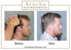 hair transplant texas 4400 grafts 36 months 2