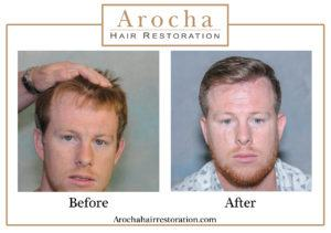 hair transplant texas 4400 grafts 36 months 3