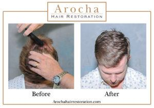 hair transplant texas 4400 grafts 36 months 6