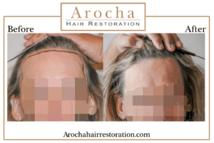 hair transplant texas 2200 grafts 10 months 3