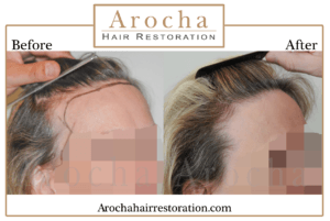 hair transplant texas 2200 grafts 10 months 4