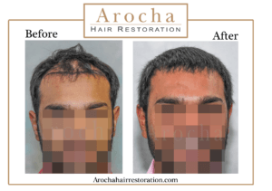 hair transplant texas 3000 grafts 24 months 4