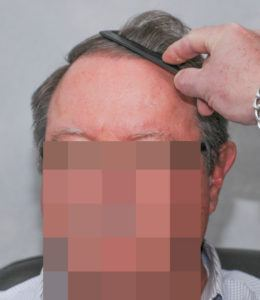 hair transplant texas 3200 grafts 13 months 10 1
