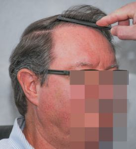 hair transplant texas 3200 grafts 13 months 11 1