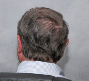 hair transplant texas 3200 grafts 13 months 12 1