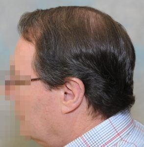 hair transplant texas 3200 grafts 13 months 17