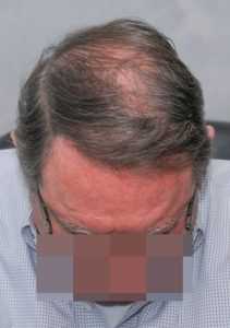 hair transplant texas 3200 grafts 13 months 2