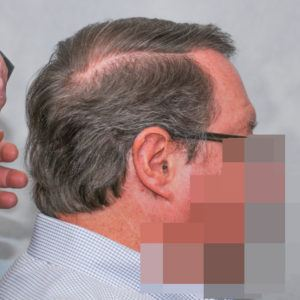 hair transplant texas 3200 grafts 13 months 4