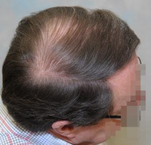 hair transplant texas 3200 grafts 13 months 7