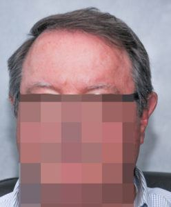 hair transplant texas 3200 grafts 13 months 8 1