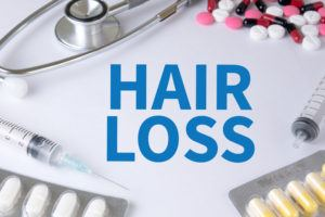 Medical Treatment for Hair Loss