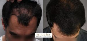 hair transplant texas 2991 FUT CD PRP 3