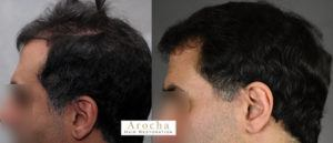 hair transplant texas 2991 FUT CD PRP 5