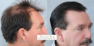 hair transplant houston texas 2000 FUT 5 years 2