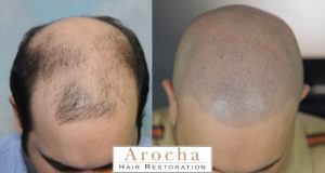 scalp micropigmentation texas 2