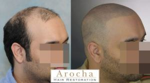 scalp micropigmentation texas 4
