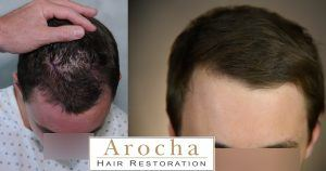 hair transplant houston strip 2000 1