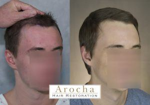hair transplant houston strip 2000 3