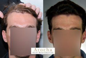 hair transplant texas strip 2000 8 months 1