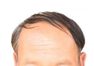 hair loss products