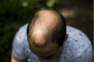 balding middle aged man