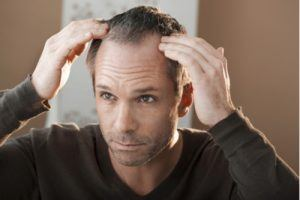 middle aged man hair loss